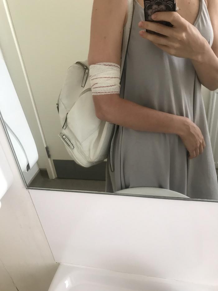 Гормональный имплант - мой отзыв Контрацепция, Гормоны, Личный опыт, Гормональный имплант, Длиннопост