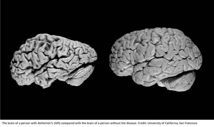 Безумная старость: болезнь Альцгеймера. Медицина, Старость, Болезнь, Мозг, Альцгеймер, Психиатрия, Scientaevulgaris, Длиннопост