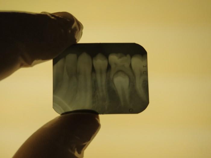 Зубки режутся. Зубы, Стоматология, Рентген
