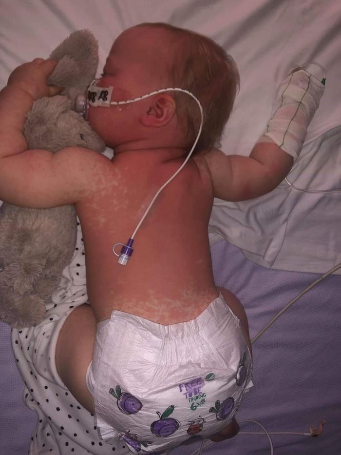 Эмоциональный пост лондонской семьи, младенец которой сейчас выздоравливает от кори Медицина, Вакцина, Корь, Родители и дети, Родители, Мама, Длиннопост, Дети, Болезнь