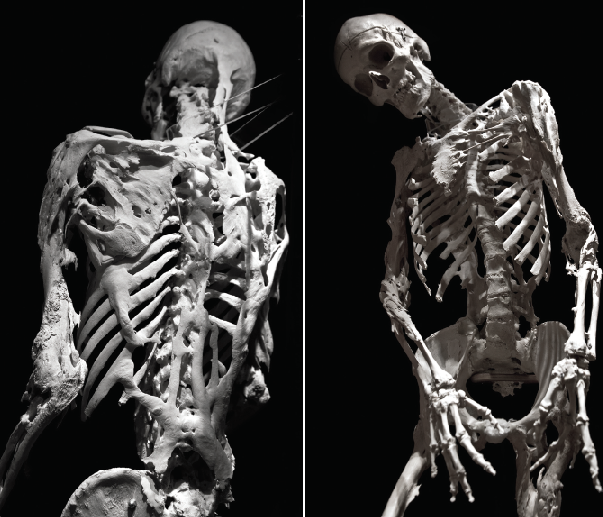 Каменные люди: фибродисплазия - история болезни. Медицина, Редкие болезни, Scientaevulgaris, Длиннопост, Жесть
