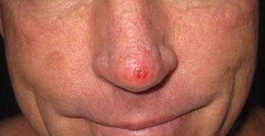 Кто и как вылечил рак кожи лица thumbnail