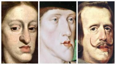 """""""Габсбургская челюсть"""" - результат инцеста. Как выродилась могущественная династия Европы Генетика, Уродство, Габсбурги, Испания, Здоровье, Династия, Биология, Кровосмешение, Длиннопост"""