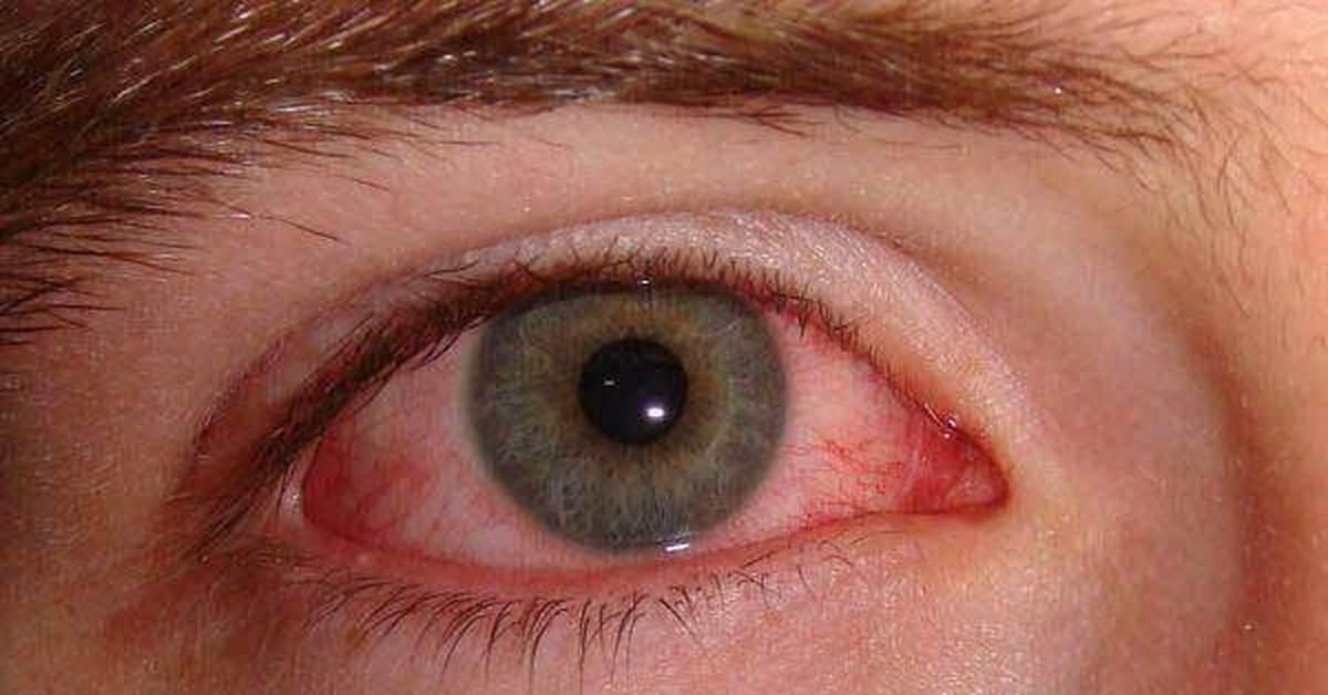 цементный раствор попал в глаза