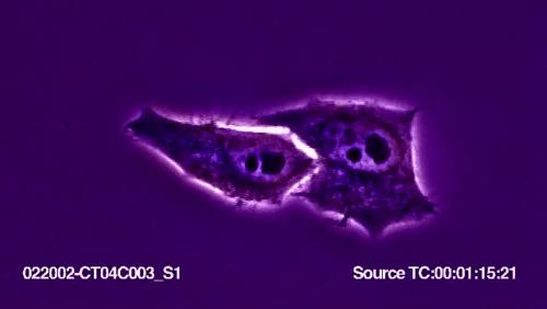 Бессмертные клетки HeLa или как раковые клетки совершили прорыв в науке Медицина, Хела, История медицины, История науки, Познавательно, США, Наука, Видео, Гифка, Длиннопост